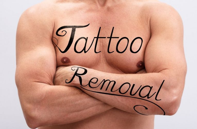 3 ways of removing a tattoo from your skin